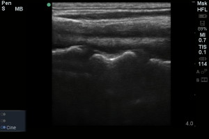 Have you ever wondered about using POCUS for C-Spine fractures?