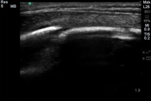 Skull fractures with #POCUS