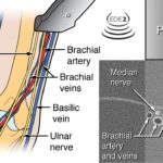 Rhein Man and POCUS-guided IVs